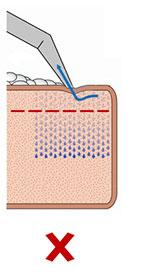 технология химчистки с подачей моющего раствора