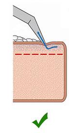 технология химчистки с использованием пены